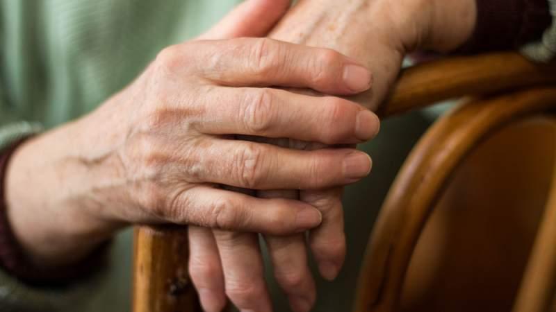 Rheumatoid Arthritis 128950370